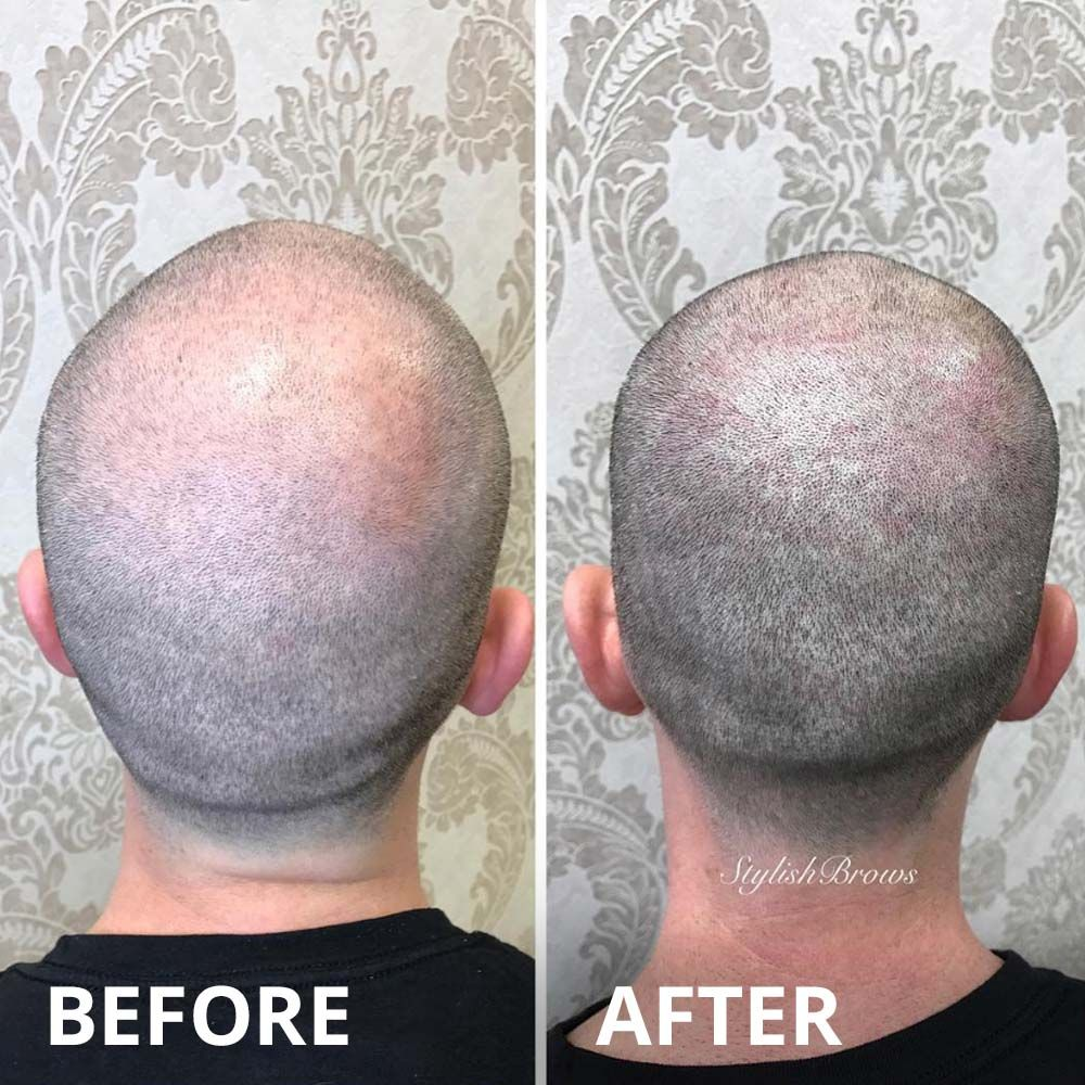 scalp-micropigmentation-procedure-stylish-brows-miami-before-after