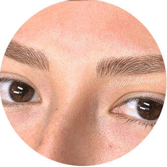 brow-treatments